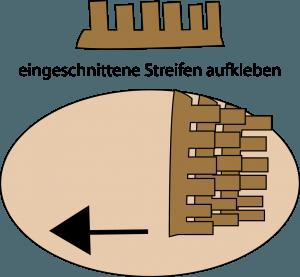 igel-streifen
